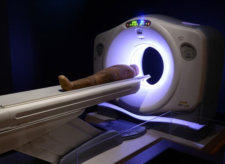 Estudiode las momias usando tecnologia moderna. Ct Scan en la exhibición momias.